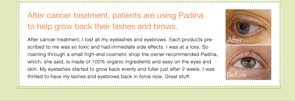 After cancer treatment, patients are using Padina to help grow back their lashes and brows. After cancer treatment, I lost all my eyelashes  and eyebrows. Each products prescribed to me was so toxic and had immediate side effects. I was at a loss. So roaming through a small high-end cosmetic shop the owner recommended Padina, which, she said, is made of 100% organic ingredients and easy on the eyes and skin. My eyelashes started to grow back evenly and fuller just after 2 weels. I was thrilled to have my lashes and eyebrows back in force now. Great stuff.
